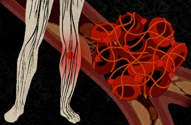 blood clots - kim carney